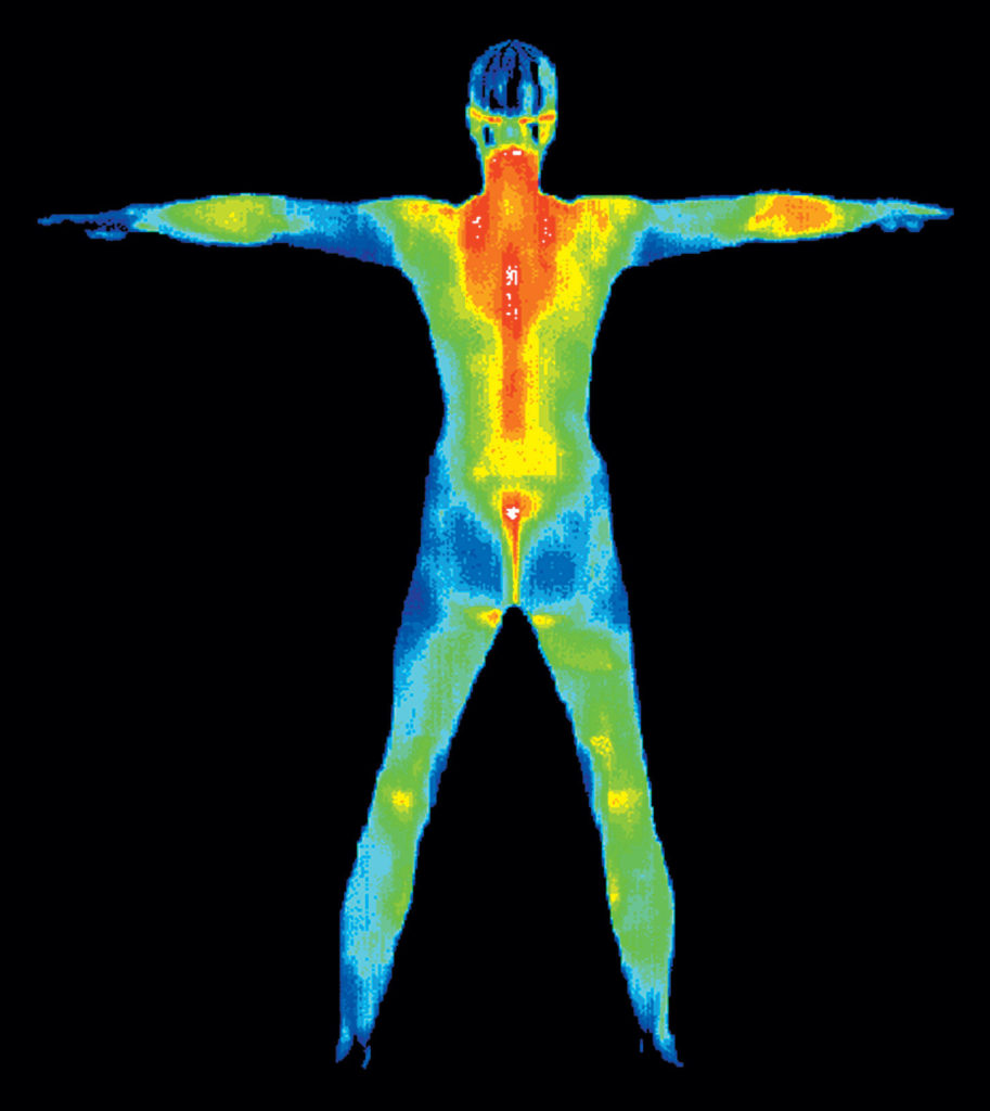 thermography slider image 1